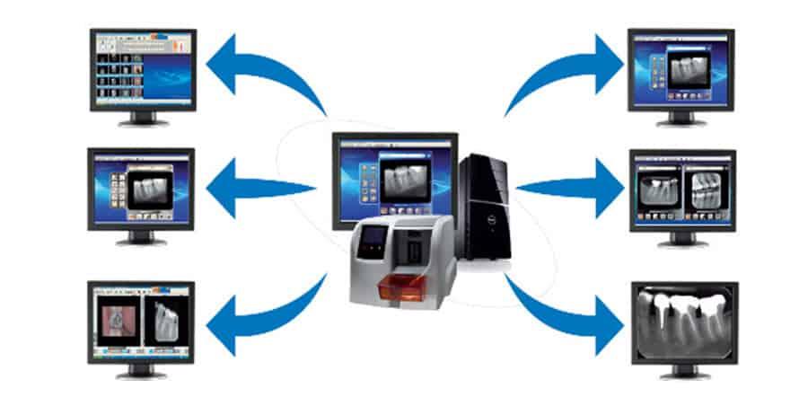 Sopix xRay System